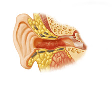 Swimmer's Ear, Illustration