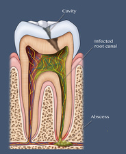 Dental Cavity and Abscess, Illustration