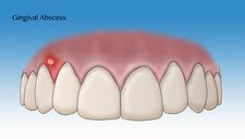 Gingival Abscess, Illustration
