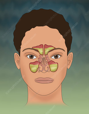 Sinusitis, Illustration