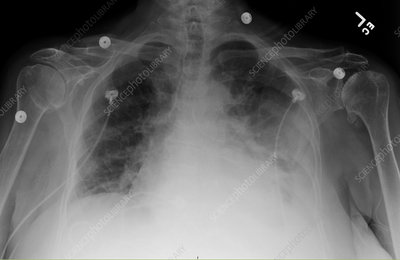 Lower left lobe infiltrate, X-ray