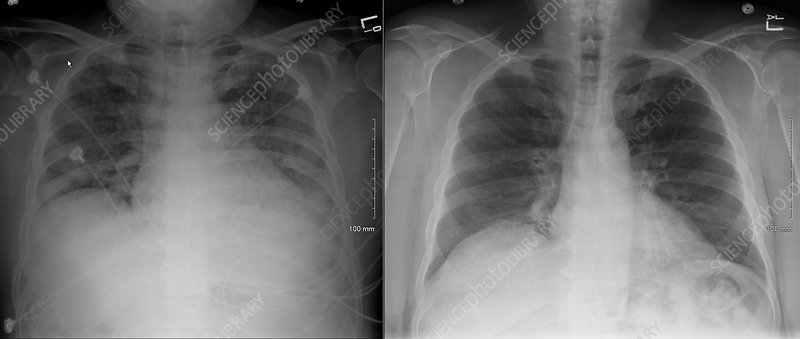 Normal Chest X Ray Vs Pneumonia Viral pneumonia...