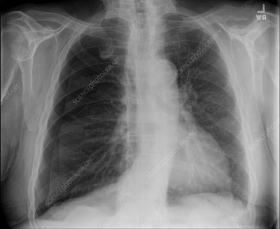 Tension pneumothorax, X-ray