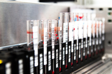 Blood sample analysis