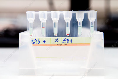 IgG and C3d antibody blood tests