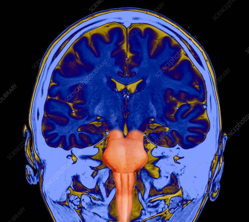 Human brain and brainstem, MRI scan - Stock Image C036/6999 ...