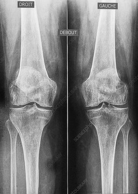 Osteoarthritis of the knees, X-ray