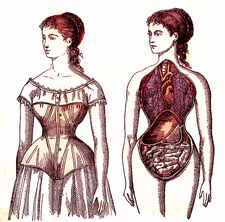Medical effects of corset wearing, 19th Century illustration