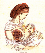 Breastfeeding, 19th Century illustration