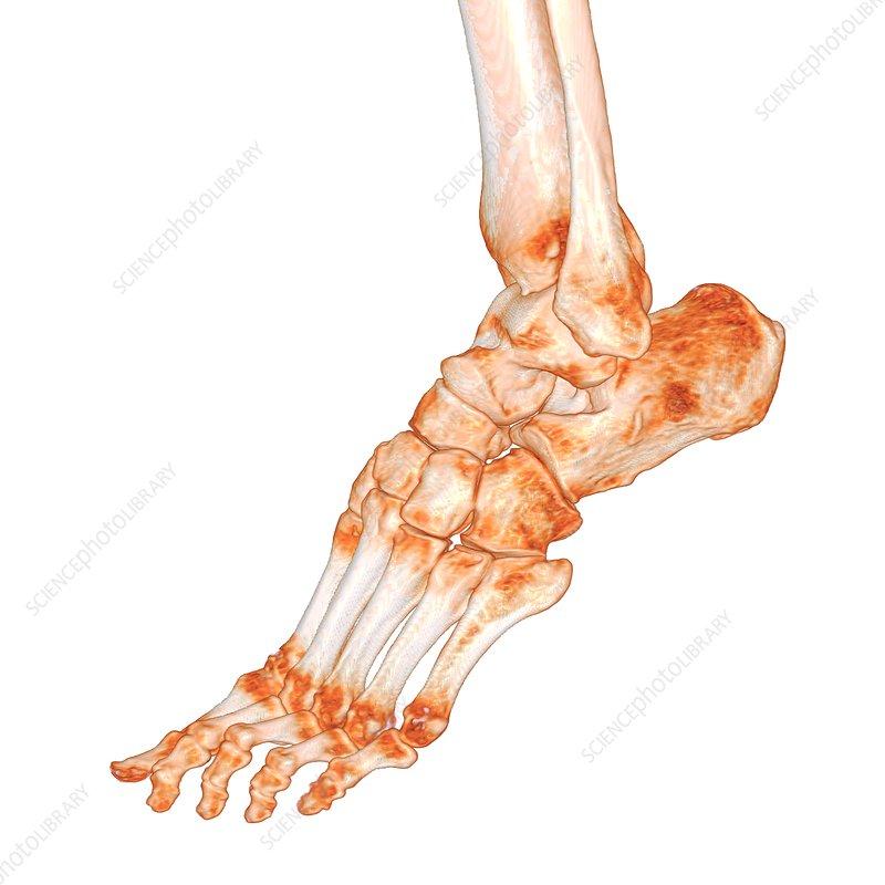 Human foot, 3D CT scan