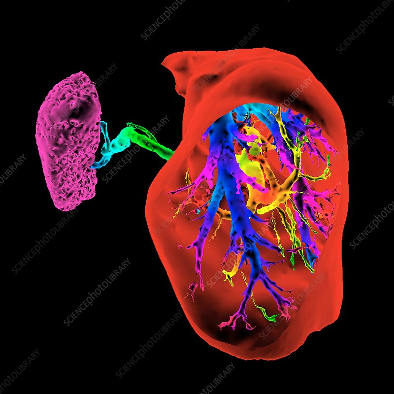 Liver and spleen and blood vessels, 3D CT scan