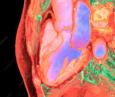 Heart and left-hand chambers, 3D CT scan
