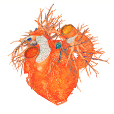Heart with coronary artery disease, 3D CT scan