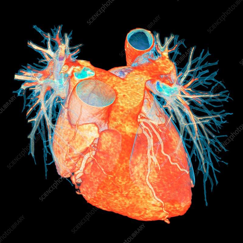 Human heart, 3D CT scan