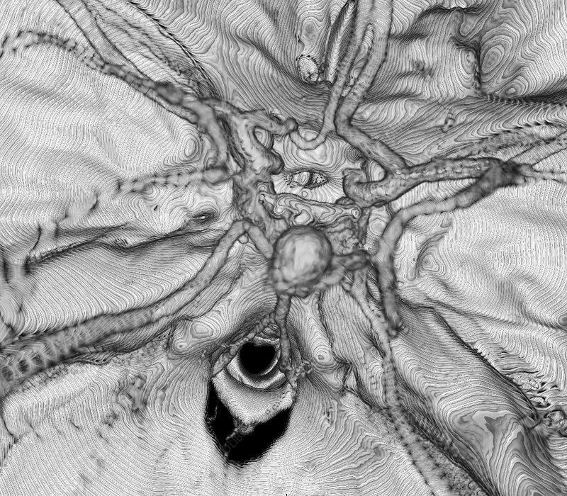 Cerebral aneurysm, 3D CT scan