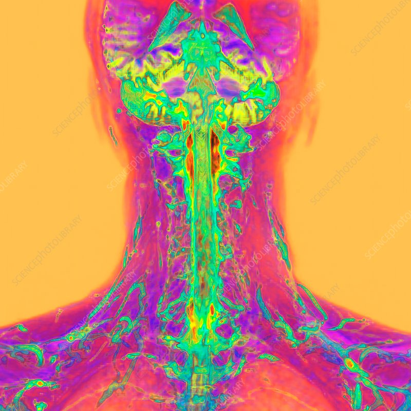 Neck and brain, 3D MRI scan