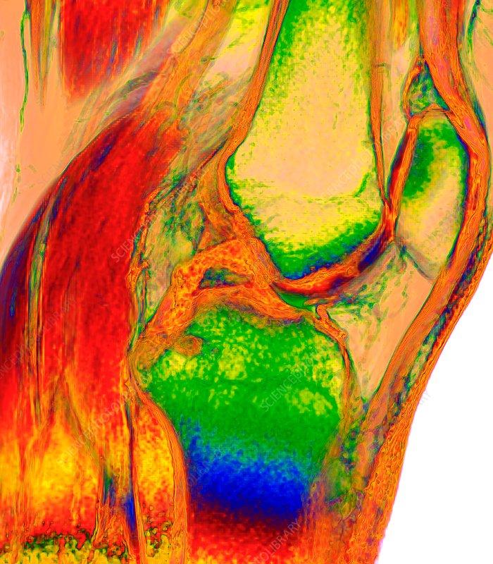 Human knee, 3D MRI scan