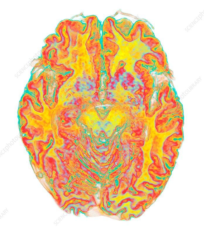 Human brain, 3D MRI scan