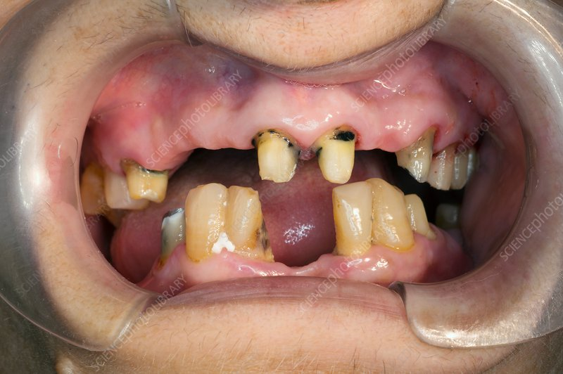 Dental caries and missing teeth