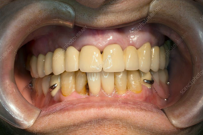 Dental bridge and prosthesis