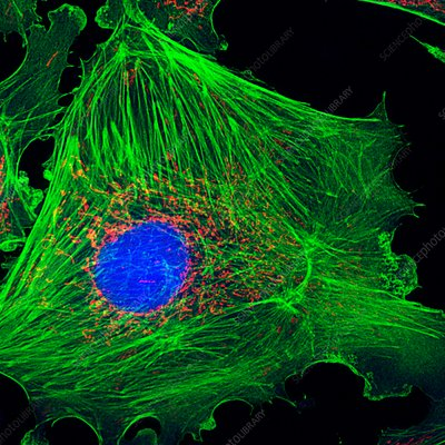 Artery cell, fluorescence deconvolution micrograph