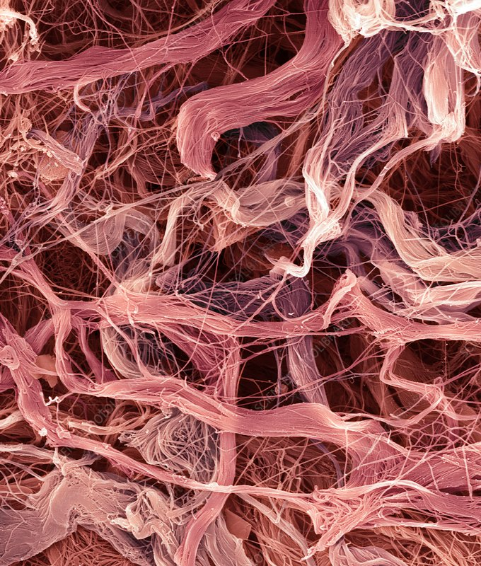 Umbilical cord collagen, SEM