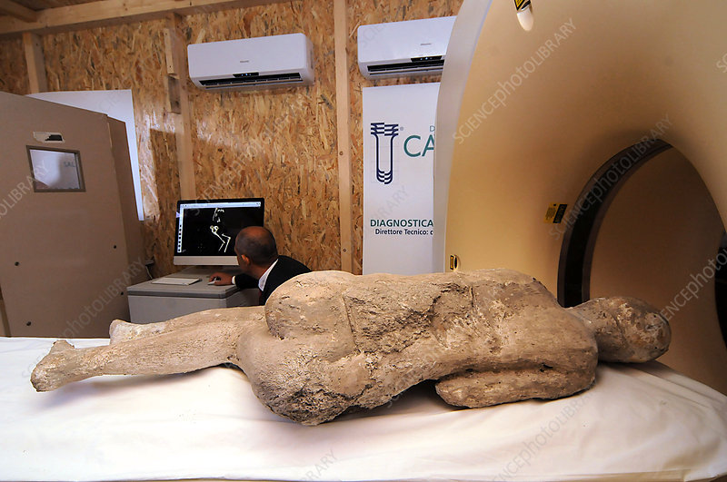 CT scanning the body cast of a Pompeii victim