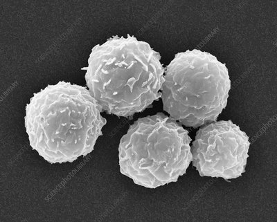 Human stem cells from bone marrow, SEM