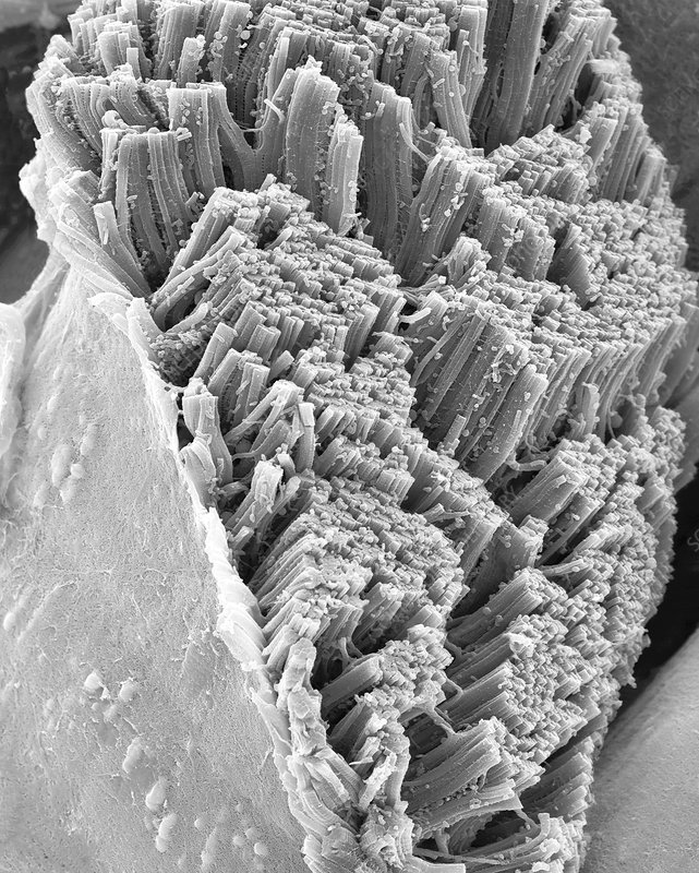 Skeletal muscle actin myosin filaments, SEM