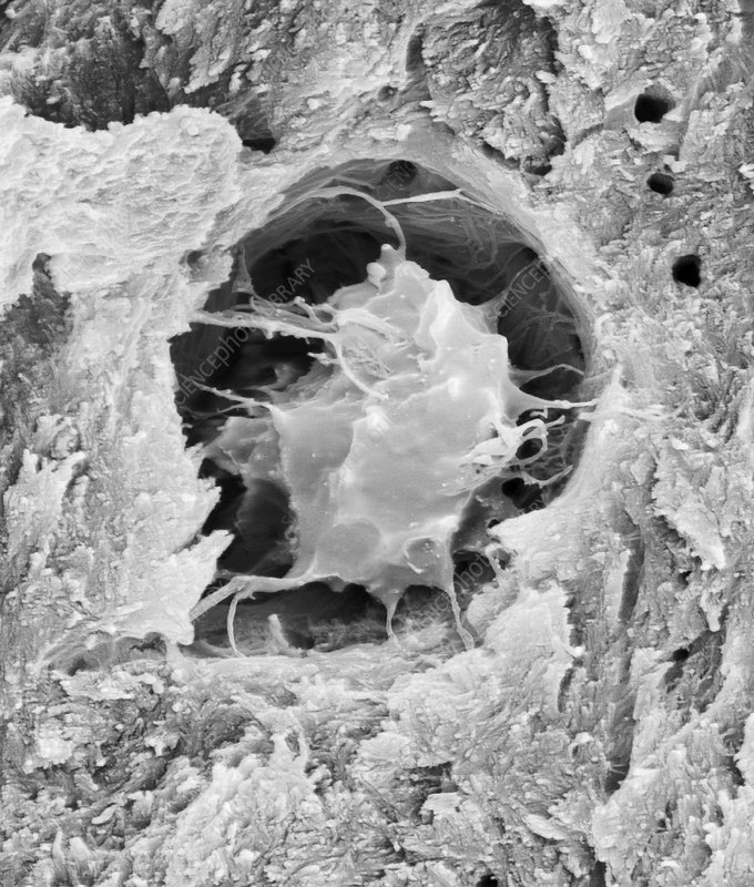 Bone cell in compact bone, SEM