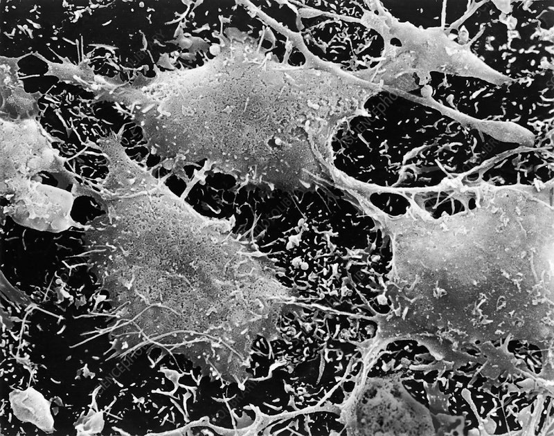 Human brain cancer cells, SEM