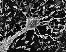 Astrocytic glial cell from CNS, SEM