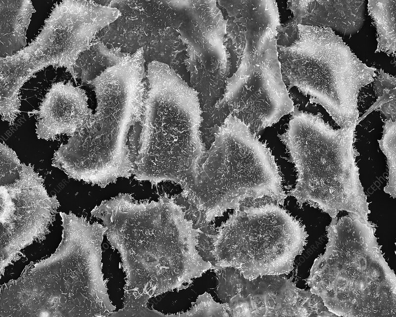 Lung epithelial cancer cells, SEM