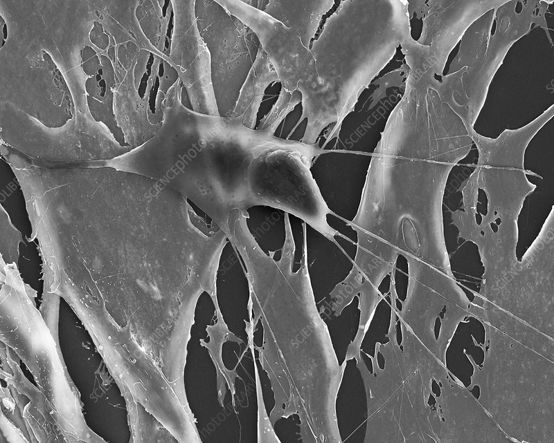 Lung fibroblast cancer cell among healthy fibroblasts, SEM