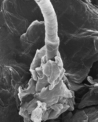 Human skin with hair emerging from hair follicle, SEM