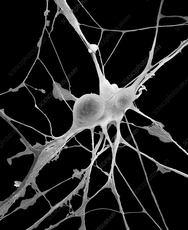 Pyramidal neurons from CNS, SEM