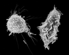 Macrophage and monocyte phagocytosis, SEM