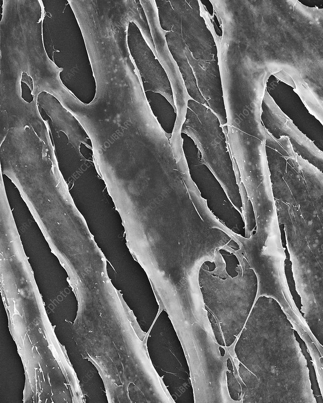 Human fibroblasts in culture, SEM