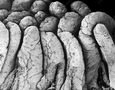 Villi of the small intestine, SEM