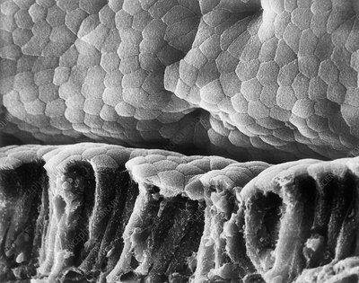 Villus surface of the small intestine, SEM