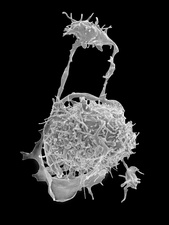 Megakaryocyte and platelet formation, SEM