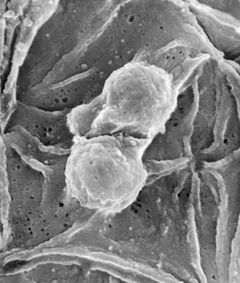 Plasmodium falciparum ring stage, SEM