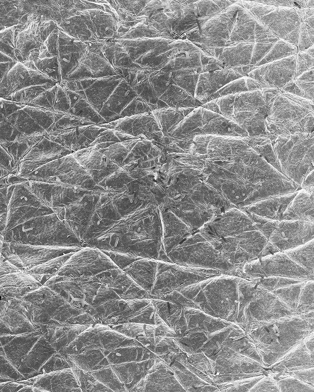 E. coli on the surface of human skin, SEM