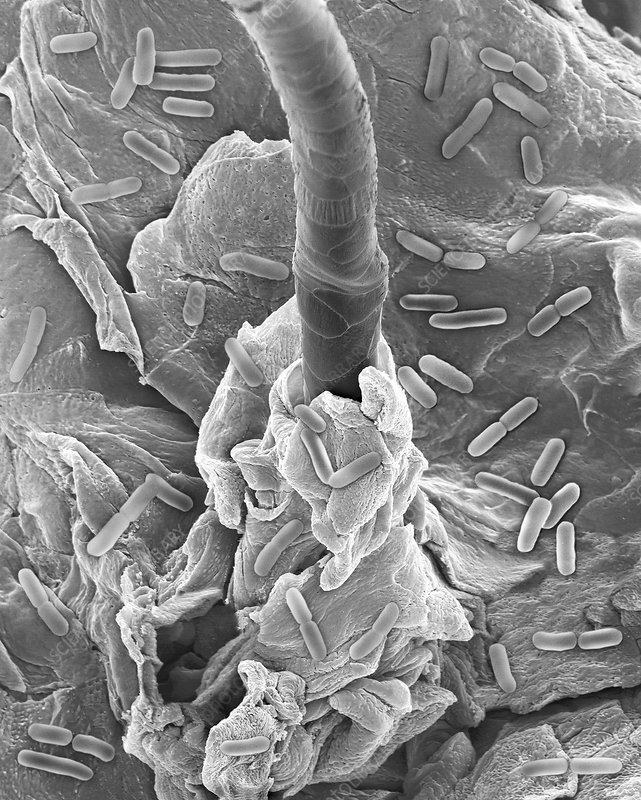 E. coli on human skin and hair follicle, SEM