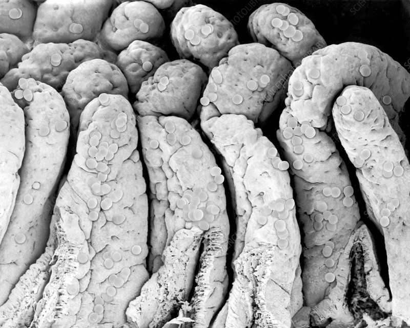 Enterococcus faecium on the small intestine, SEM