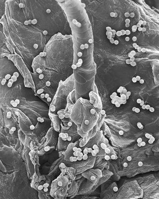 Enterococcus faecium on human skin, SEM
