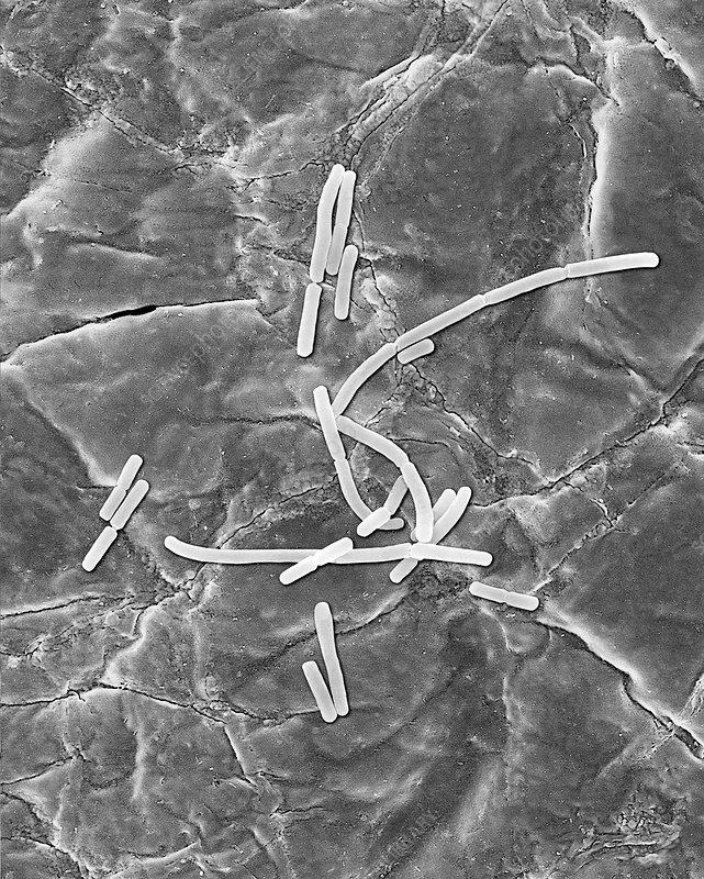 Bacillus anthracis, vegetative stage, SEM
