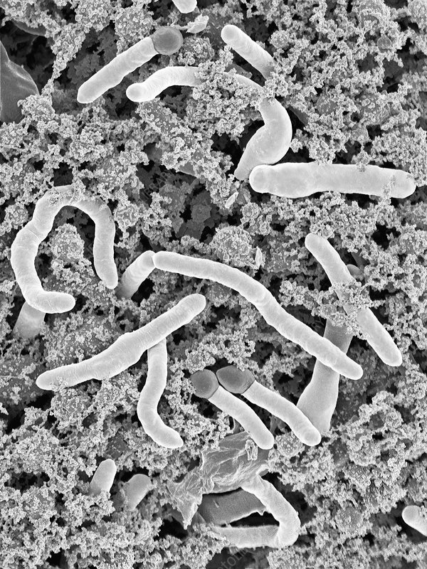Geobacillus stearothermophilus, SEM