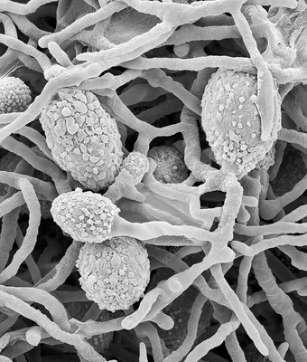 Pithomyces sp. hyphae and fruiting structures, SEM