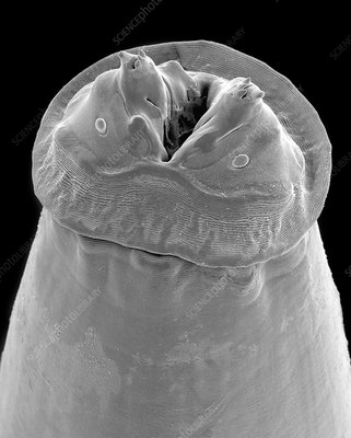 Raccoon intestinal roundworm, SEM